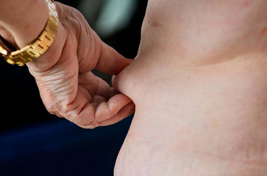 obezite cesitleri nelerdir
